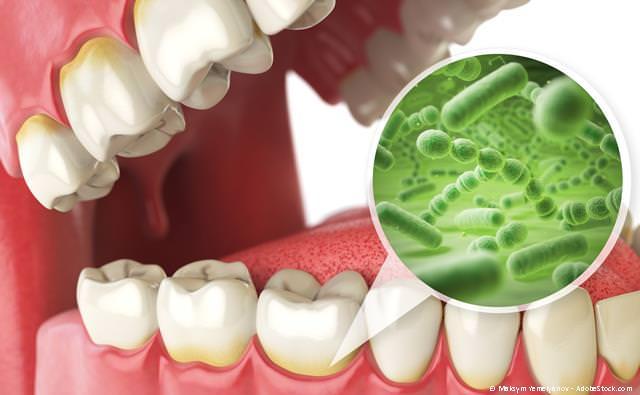 Parodontitisbehandlung bei Zahnfleischentzündungen und Zahnlockerungen