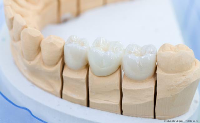 Hochwertiger Zahnersatz: festsitzend und herausnehmbar